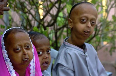 In this picture taken 25 January 2005, Indian Progeria affected Khan family brothers and sister ...